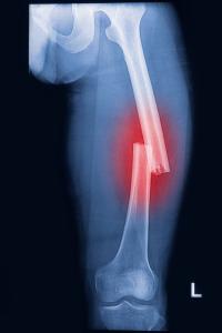 Femur-fracture-4
